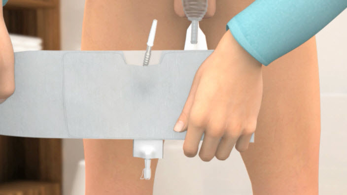 Comment utiliser la petite poche de jambe Conveen Active ?