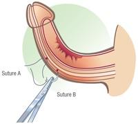 vacuumpomp erectiestoornis