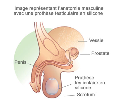 prothèse testiculaire